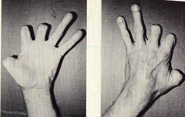 John Wilson (1906-1979) - His Left Hand